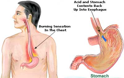 Acid Reflux Natural Treatment What Causes Heartburn